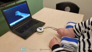 implantant-ruki