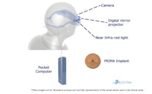 Pixium-Vision-bionic-eye